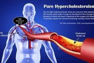降胆固醇新药今日获FDA突破性疗法认定