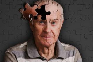 俄科学家找到阿尔茨海默症的最佳治疗途径