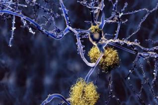 Cell子刊:为什么抗痴呆药物不尽如人意?