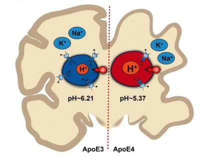 脑细胞酸碱失衡或致老年痴呆