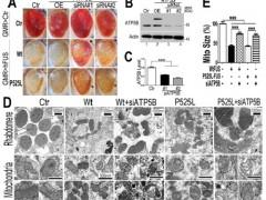 生物物理所揭示FUS诱导神经退行性疾病的新机制