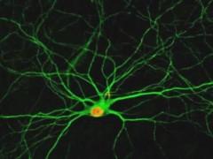 一种新型药物混合制剂或能治疗多种神经变性疾病